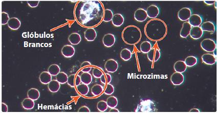 Os microzimas (endobiontes) – que aparecem no sangue (círculo) no microscópio de campo escuro - são processos independentes do físico porque não perecem com ele, e pelo contrário permanecem após a sua destruição – em minhas hipóteses eles constituem, a energia essencial que alimentam as células